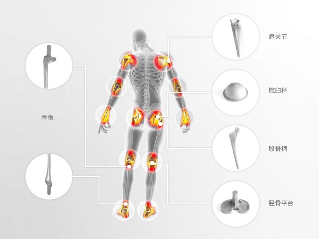 钛植入件在人体不同部位应用